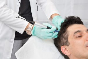 Mezoterapie-in-alopecie-tratament-cadere-par
